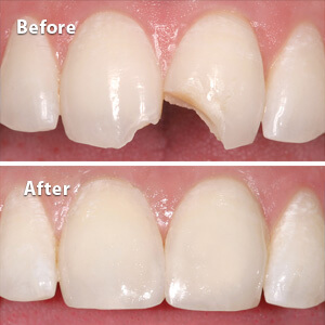 examples of before and after the Dental Bonding Fort Worth TX provides